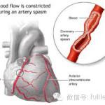 心脏病是世界卫生组织公布的十大死因前三位,年轻的你应该远离它!
